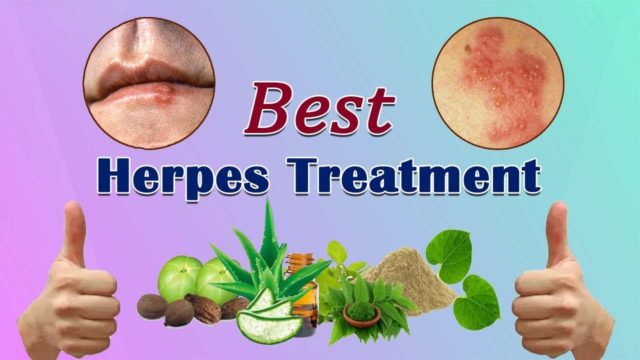 herpoveda best treatment for herpes